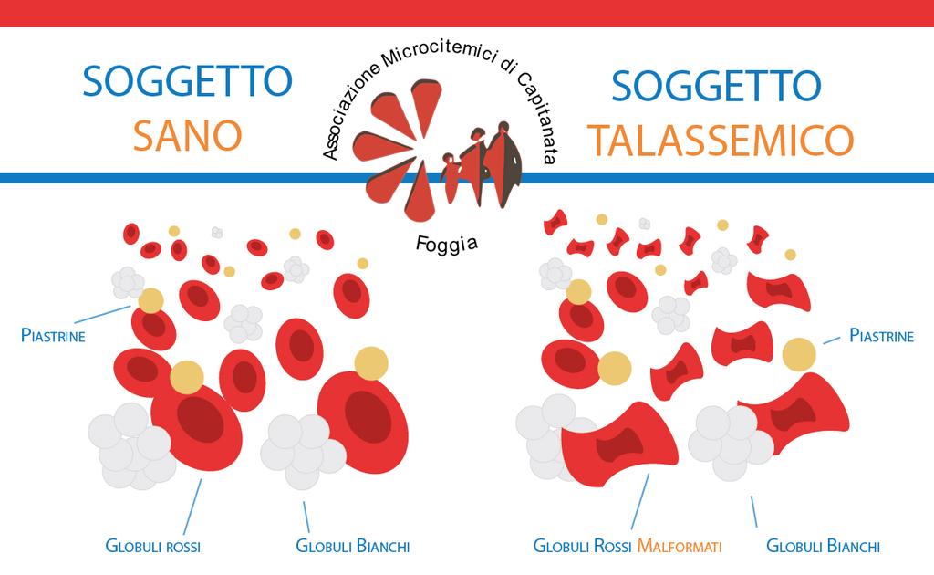 La Talassemia Associazione Microcitemici Di Capitanata Foggia